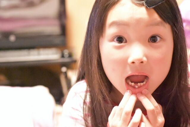 歯が抜けそうな女の子