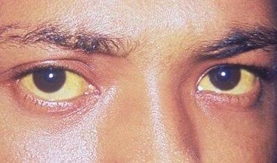 黄疸が目に出る症状