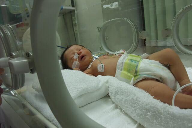 保育器に入った赤ちゃん