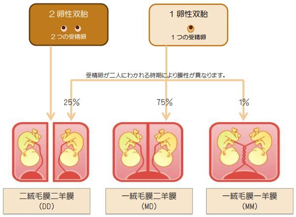 膜性による多胎妊娠の種類