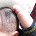髪の毛が薄い赤ちゃん