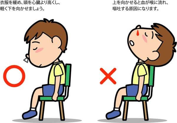 急に鼻血がたときの対処法