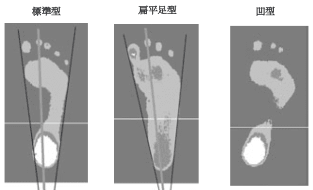 接地足型の分類
