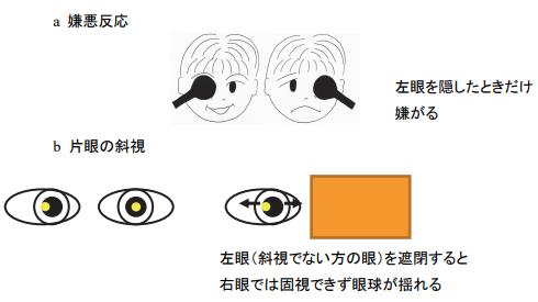 嫌悪反応と斜視の確認