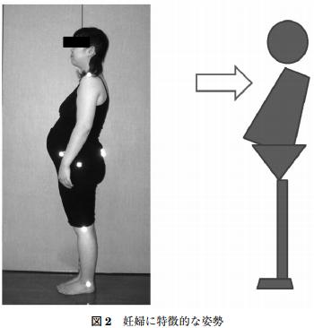 妊婦に特徴的な姿勢